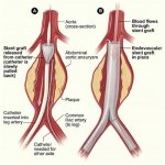 Esquema mostrando a liberação da endoprotese de aorta abdominal