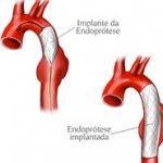 Endoprotese para tratamento de aneurisma de aorta torácica