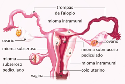 Mioma