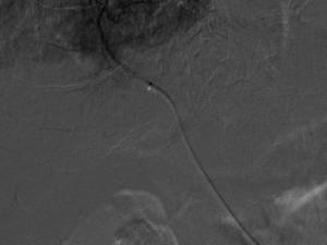 Microcateter nas proximidades do tumor, para quimioembolização�