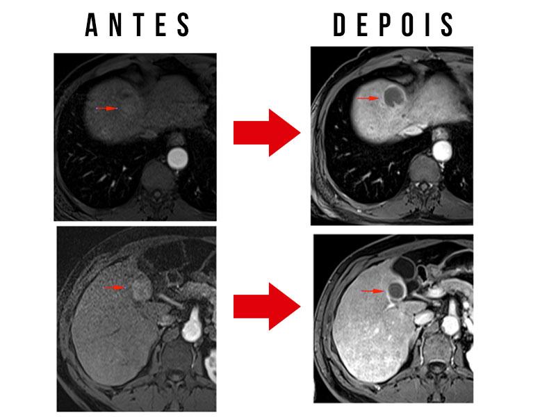 Paciente com múltiplos tumores tratado por quimioembolização