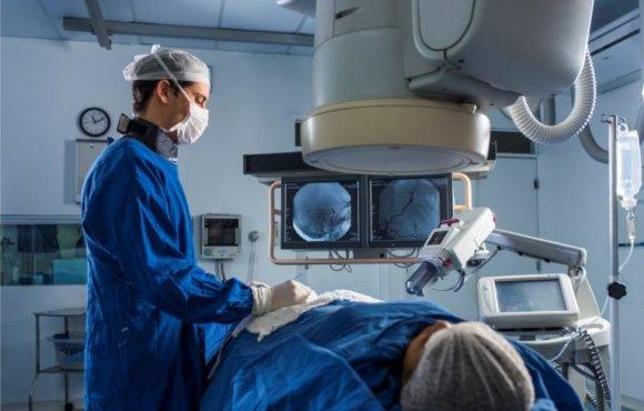 Embolização de miomas uterinos