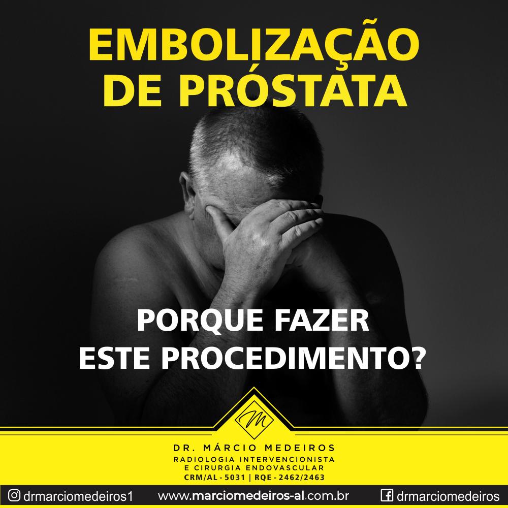 Saiba por que os homens não devem temer o procedimento minimamente invasivo de embolização de próstata.