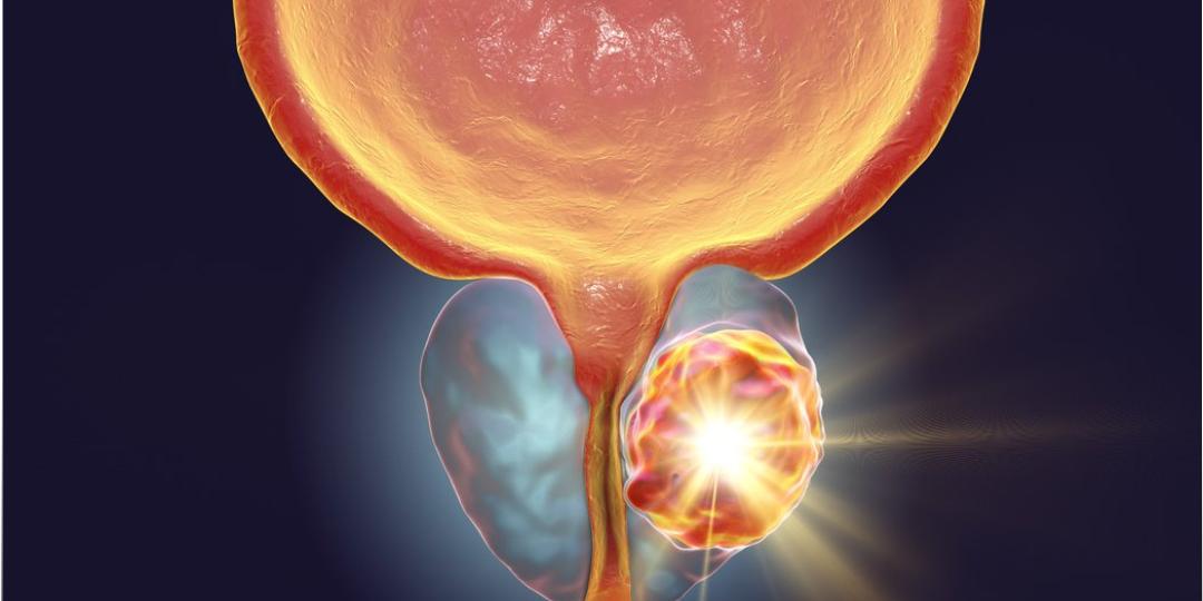 Escore de próstata teste