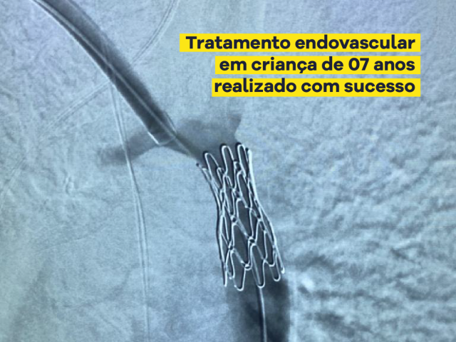 tratamento endovascular de coarctação de aorta com implante de stentgraft